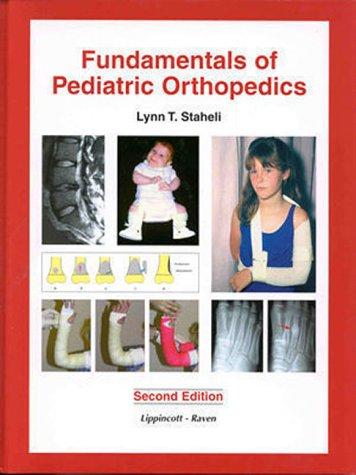 9780781716321: Fundmentals of Pediatric Orthopedics