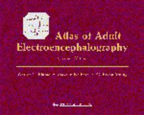 9780781729963: Atlas of Adult Electroencephalography