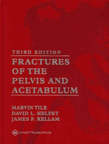 9780781732130: Fractures of the Pelvis and Acetabulum