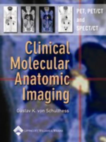 Clinical Molecular Anatomic Imaging: Pet, Pet/Ct, And Spect/Ct