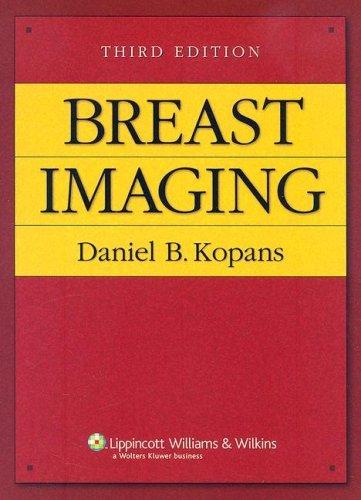 9780781747684: Breast Imaging