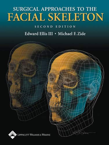 Surgical Approaches to the Facial Skeleton (Hardcover): Michael F. Zide