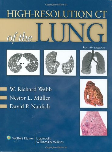 9780781769099: High-Resolution CT of the Lung