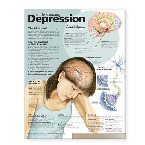 9780781773164: Understanding Depression Anatomical Chart