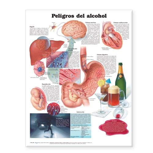9780781773355: Dangers of Alcohol Anatomical Chart in Spanish (Peligros del alcohol)