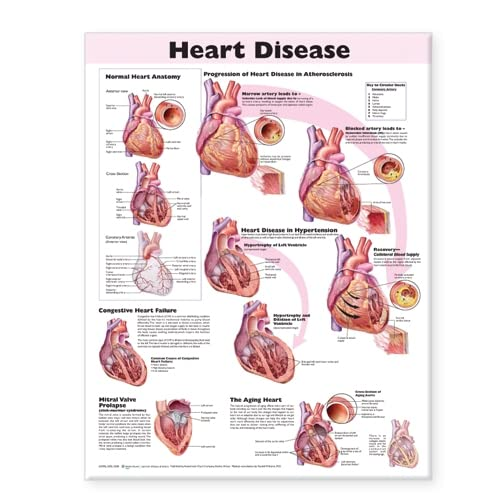 9780781773386: Heart Disease Anatomical Chart