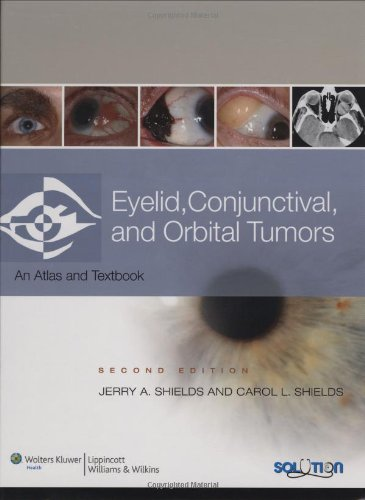 9780781775786: Eyelid, Conjunctival, and Orbital Tumors: An Atlas and Text