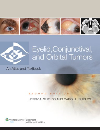 9780781775816: Eyelid, Conjunctival, and Orbital Tumors and Intraocular Tumors: An Atlas and Text