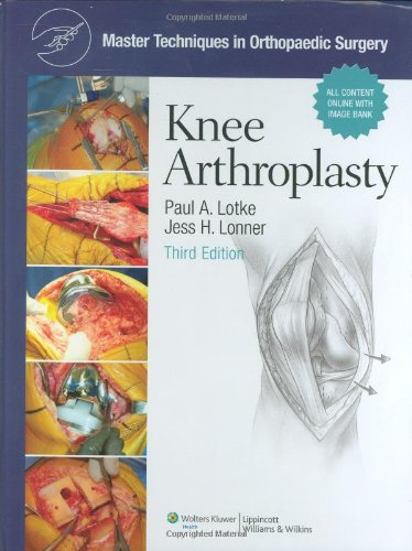 9780781779227: Master Techniques in Orthopaedic Surgery, Knee Arthroplasty