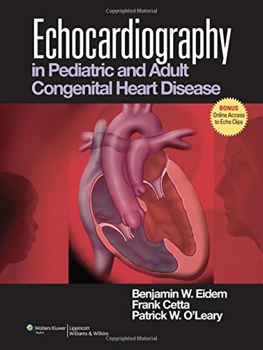 9780781781367: Echocardiography in Pediatric and Adult Congenital Heart Disease