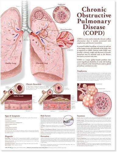 9780781782371: Chronic Obstructive Pulmonary Disease Anatomical Chart