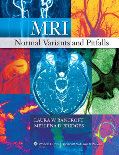 9780781783149: MRI Normal Variants and Pitfalls