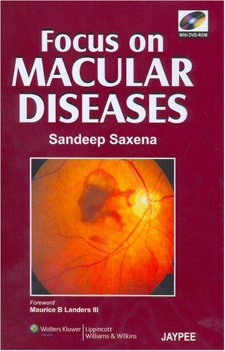 9780781791298: Focus on Macular Diseases: Co-Published by Jaypee Brothers and Lippincott Williams & Wilkins