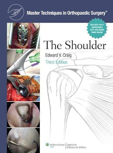 9780781797481: The Shoulder