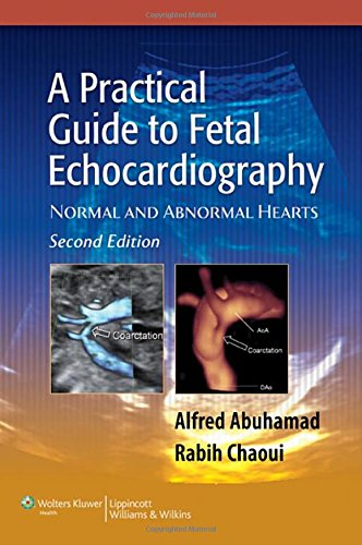 9780781797573: A Practical Guide to Fetal Echocardiography: Normal and Abnormal Hearts (Abuhamad, A Practical Guide to Fetal Echocardiography)