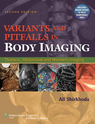 9780781797887: Variants and Pitfalls in Body Imaging: Thoracic, Abdominal and Women's Imaging