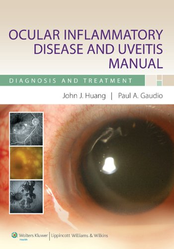 9780781798365: Ocular Inflammatory Disease and Uveitis Manual: Diagnosis and Treatment