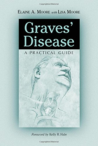 9780786410118: Graves' Disease: A Practical Guide (McFarland Health Topics)