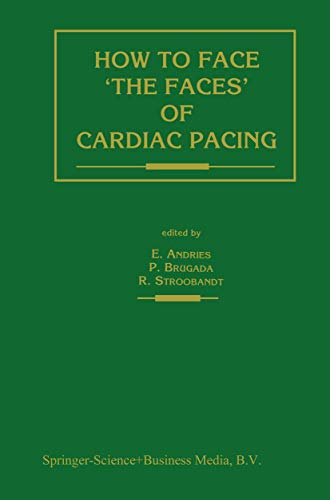 9780792315285: How to face 'the faces' of CARDIAC PACING (Developments in Cardiovascular Medicine)