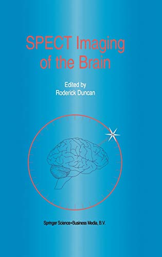 9780792341864: Spect Imaging of the Brain (Developments in Nuclear Medicine)