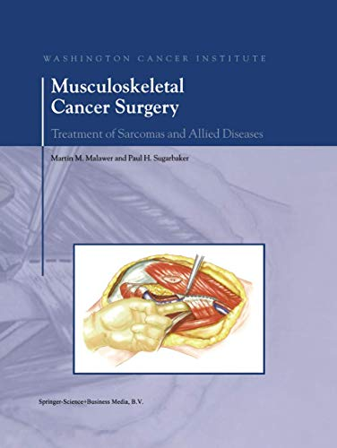 Musculoskeletal Cancer Surgery: Treatment of Sarcomas and Allied Diseases: Martin M. Malawer