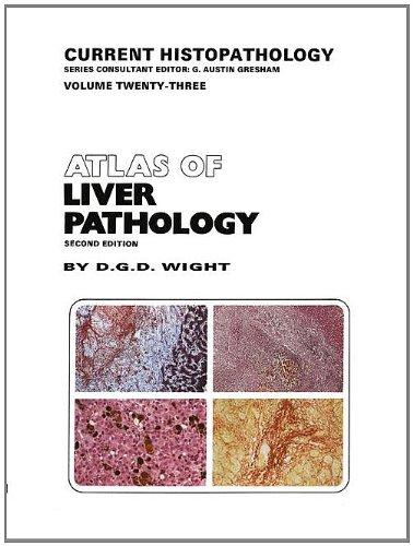 Atlas of Liver Pathology: Wight, D.G.D.
