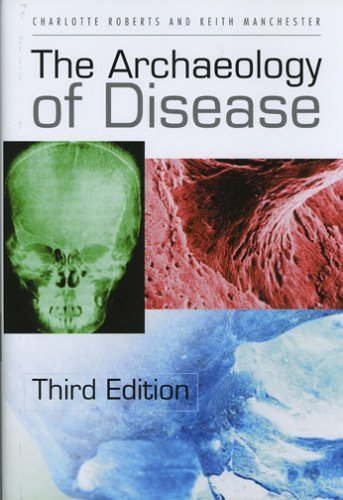 9780801442322: The Archaeology of Disease