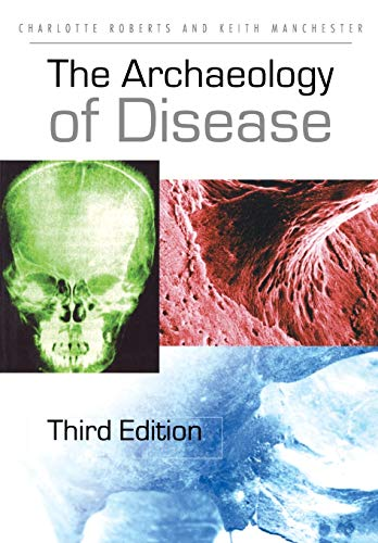 9780801473883: The Archaeology of Disease