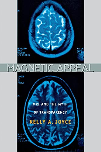 9780801474569: Magnetic Appeal: MRI and the Myth of Transparency