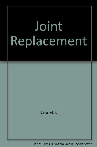 Joint Replacement: State of the Art: Richard Coombs; Anthony