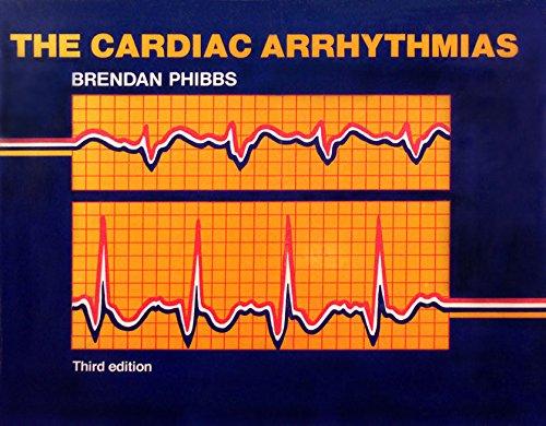 9780801639111: The Cardiac Arrhythmias
