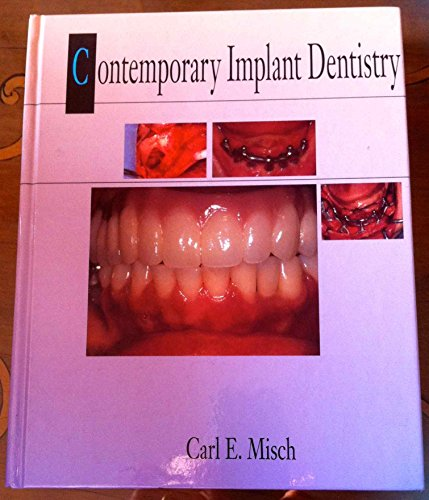 9780801660733: Contemporary Implant Dentistry