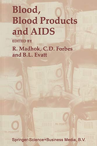 9780801836084: Blood, Blood Products, and Aids (Johns Hopkins Series in Contemporary Medicine and Public Health)