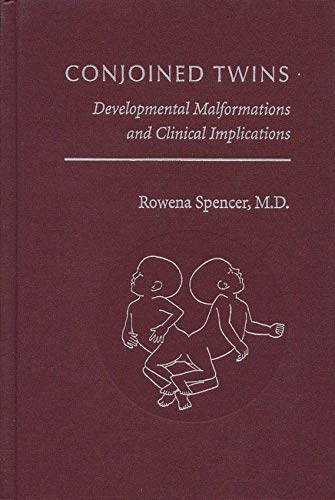 9780801870705: Conjoined Twins: Developmental Malformations and Clinical Implications