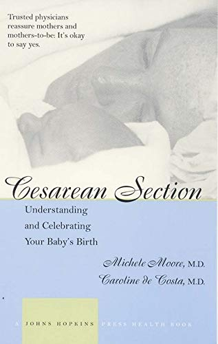 9780801873379: Cesarean Section: Understanding and Celebrating Your Baby's Birth (A Johns Hopkins Press Health Book)
