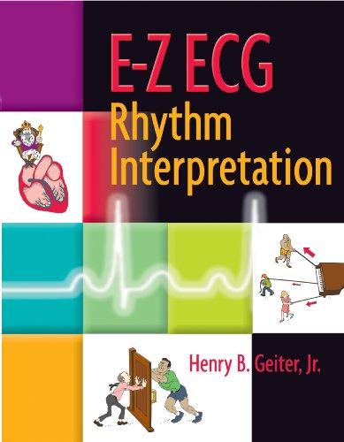 9780803610439: E-Z ECG Rhythm Interpretation