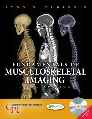 9780803619463: Fundamentals of Musculoskeletal Imaging (Contemporary Perspectives in Rehabilitation)