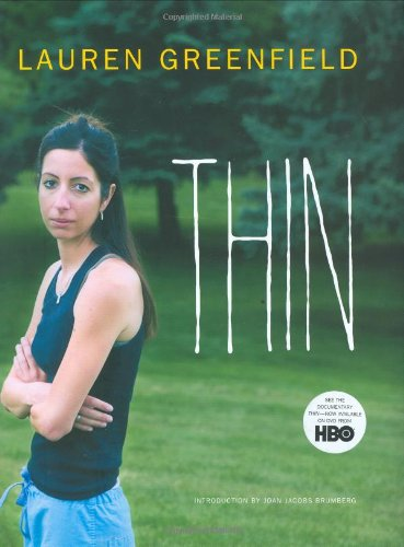 9780811856331: Thin
