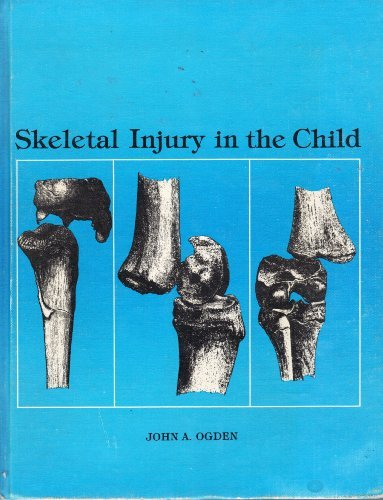 9780812108095: Skeletal Injury in the Child