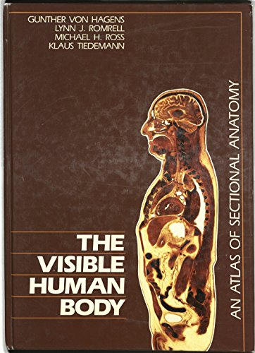 9780812112696: Visible Human Body: An Atlas of Sectional Anatomy