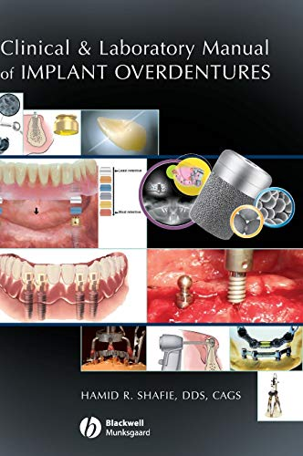 9780813808819: Clinical and Laboratory Manual of Implant Overdentures
