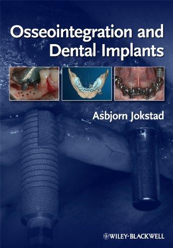 9780813813417: Osseointegration and Dental Implants