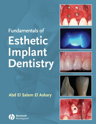 9780813814483: Fundamentals of Esthetic Dentistry, Second Edition