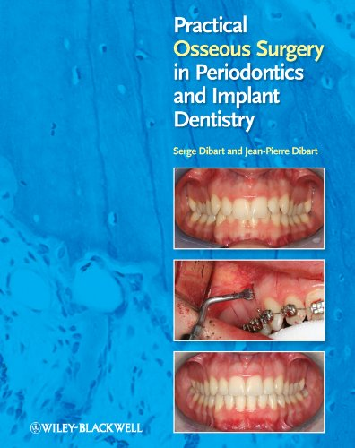 9780813818122: Practical Osseous Surgery in Periodontics and Implant Dentistry