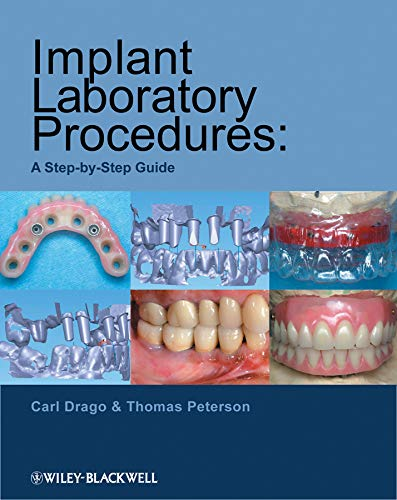 9780813823010: Implant Laboratory Procedures: A Step-by-Step Guide