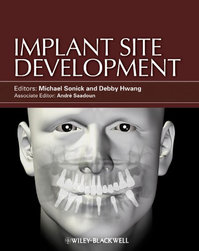 9780813825120: Implant Site Development