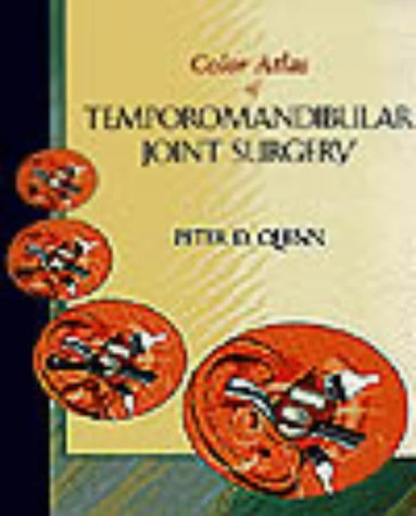 9780815145400: Color Atlas Of Temporomandibular Joint Surgery, 1e