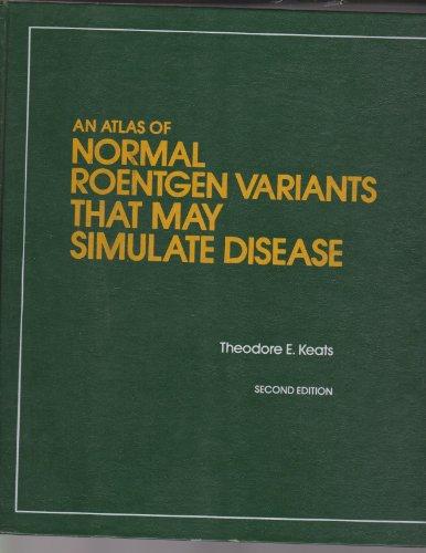 9780815150077: Atlas of Normal Roentgen Variants That May Simulate Disease