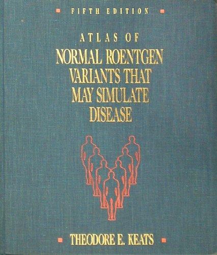9780815150480: Atlas of Normal Roentgen Variants That May Simulate Disease