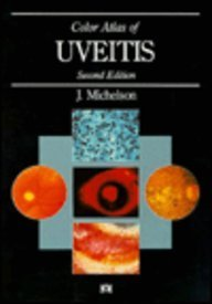 9780815158721: Color Atlas of Uveitis